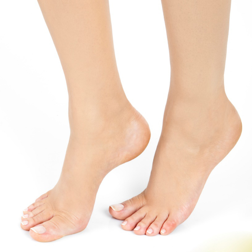 Cracked Heel Treatment - The Foot and Nail Surgery