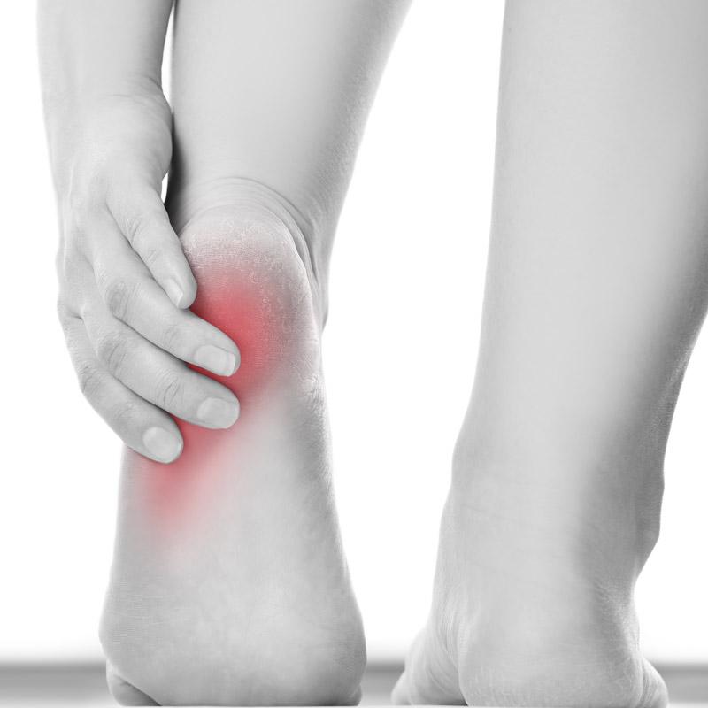 Heel Pain Treatment - The Foot and Nail Surgery